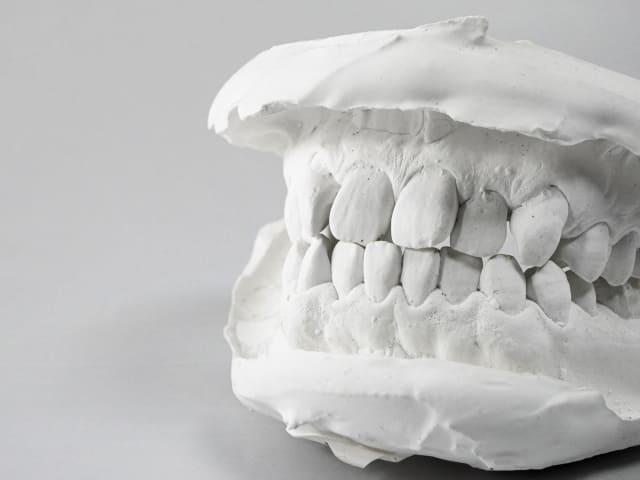 親しらず抜歯1日のできごと(完全埋没・真横)【食べ物・腫れ・痛みなどなど】
